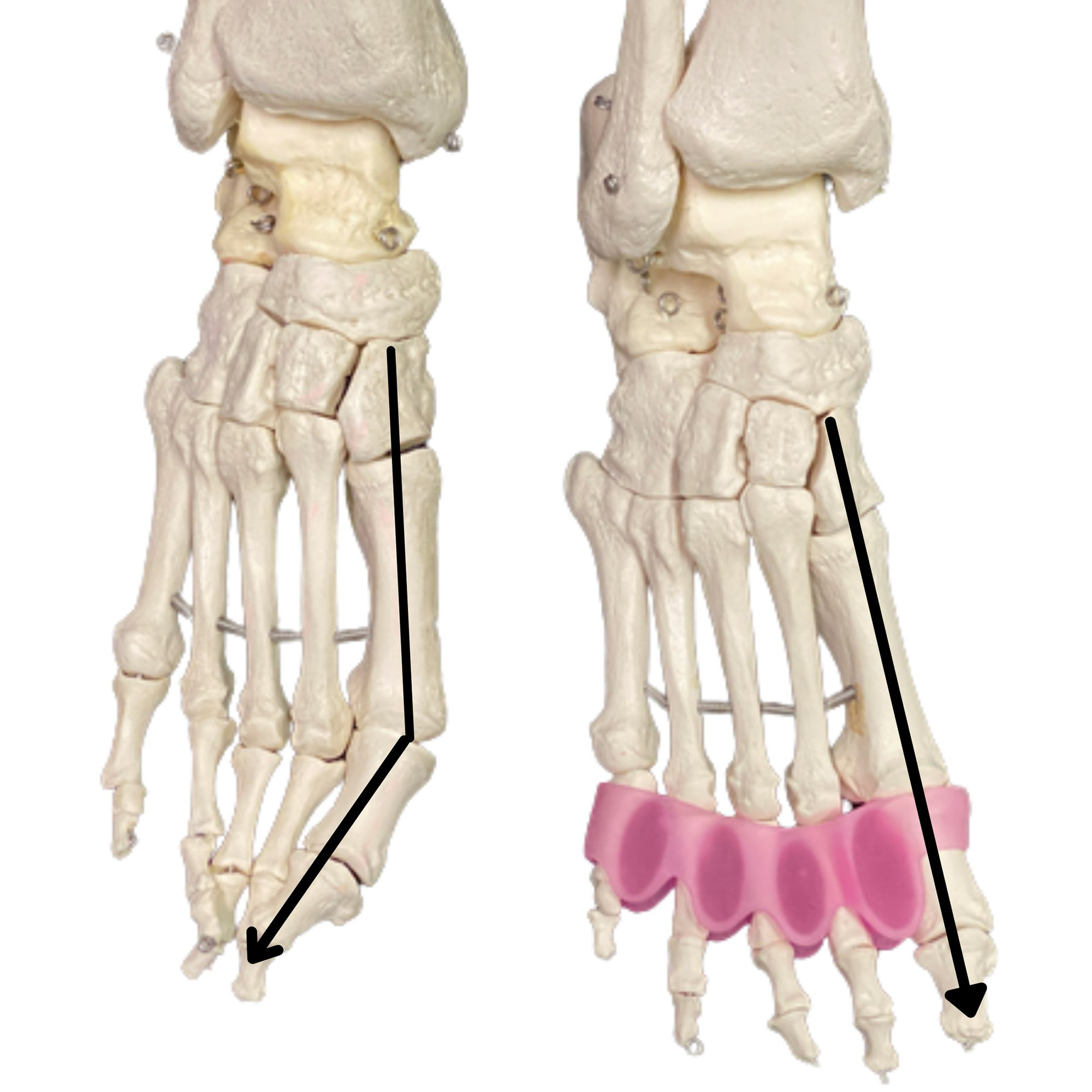 Flamingo Feet Silicone Toe Activators